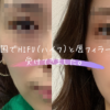 【経過写真レポ付き】韓国でシュリンクHIFU(ハイフ)と唇フィラーを体験してきました